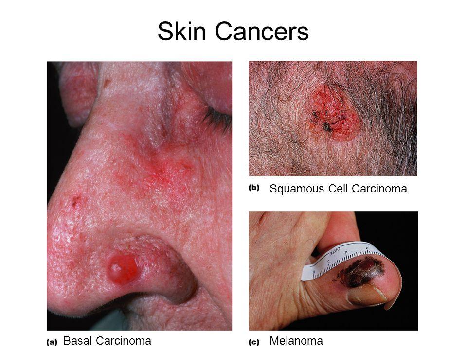 Skin Cancers Squamous Cell Carcinoma Basal Carcinoma Melanoma