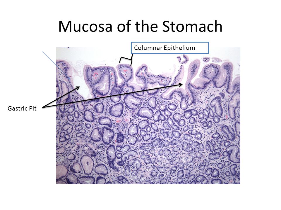 Mucosa of the Stomach Columnar Epithelium Gastric Pit