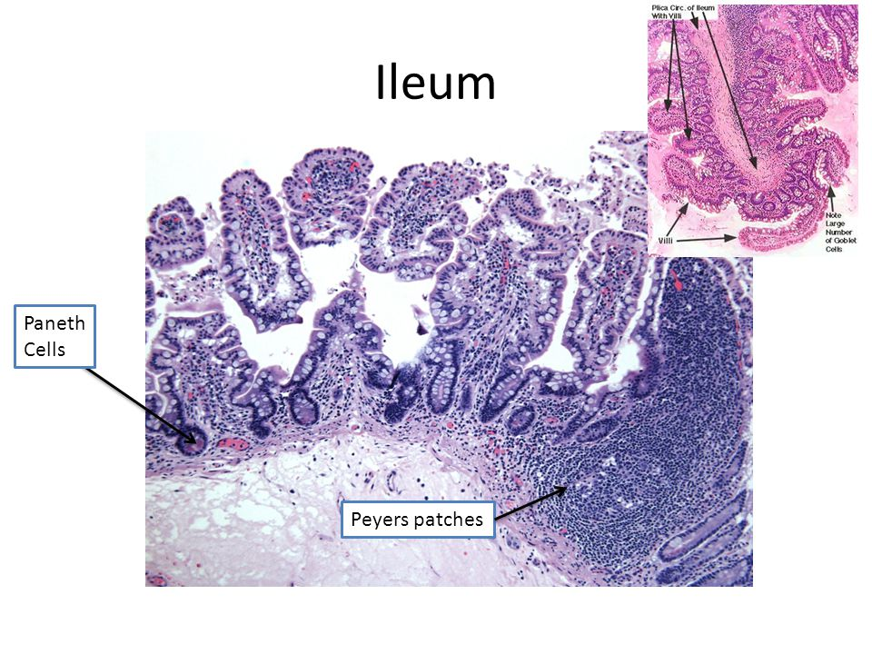 Ileum Paneth Cells Peyers patches