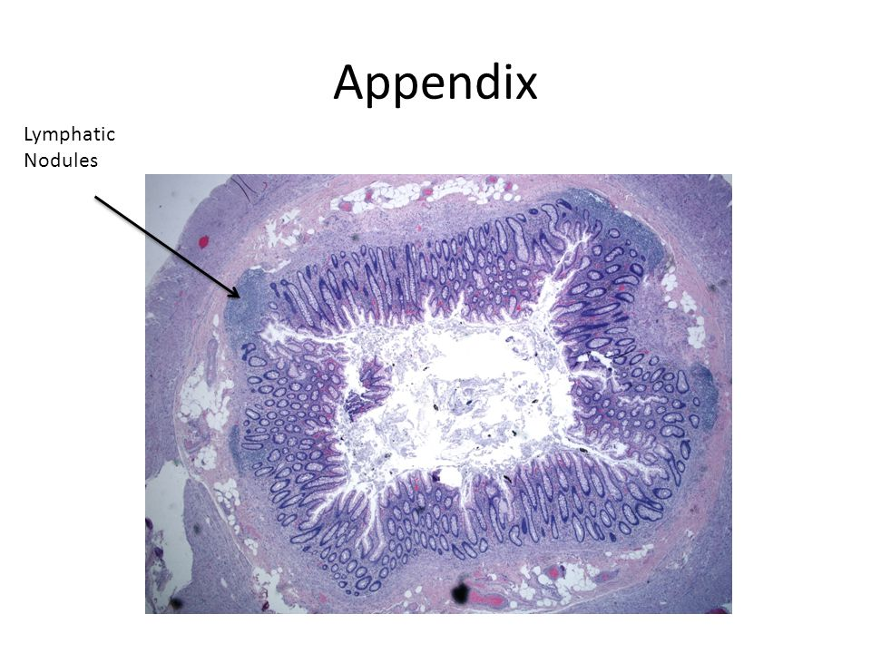 Appendix Lymphatic Nodules