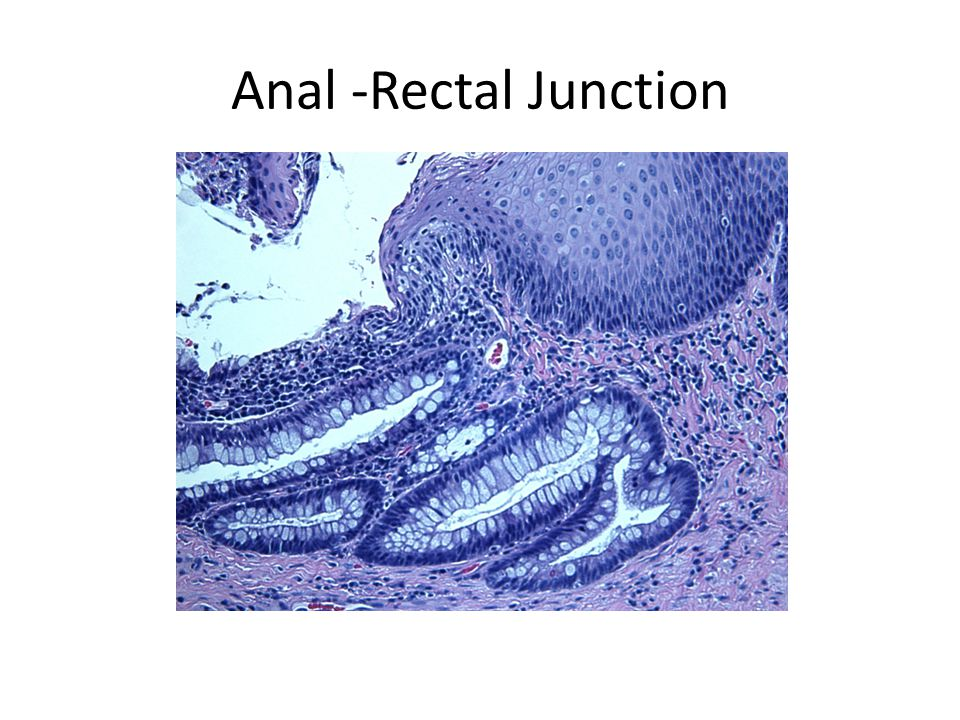 Anal -Rectal Junction