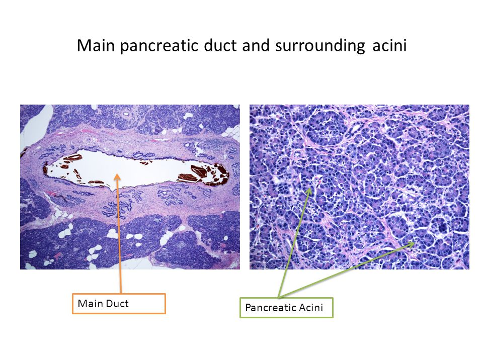 Main pancreatic duct and surrounding acini