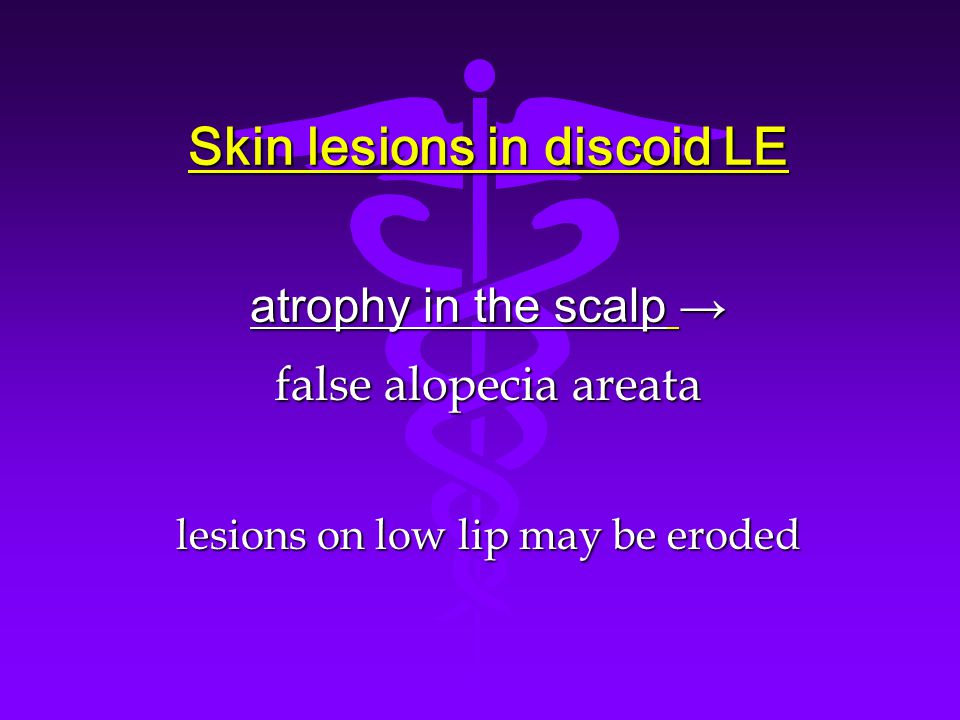 Skin lesions in discoid LE atrophy in the scalp → false alopecia areata lesions on low lip may be eroded