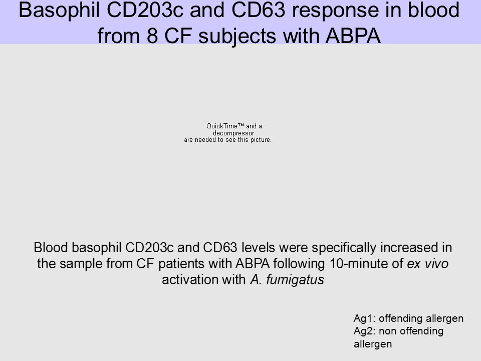 Basophil CD203c and CD63 response in blood from 8 CF subjects with ABPA