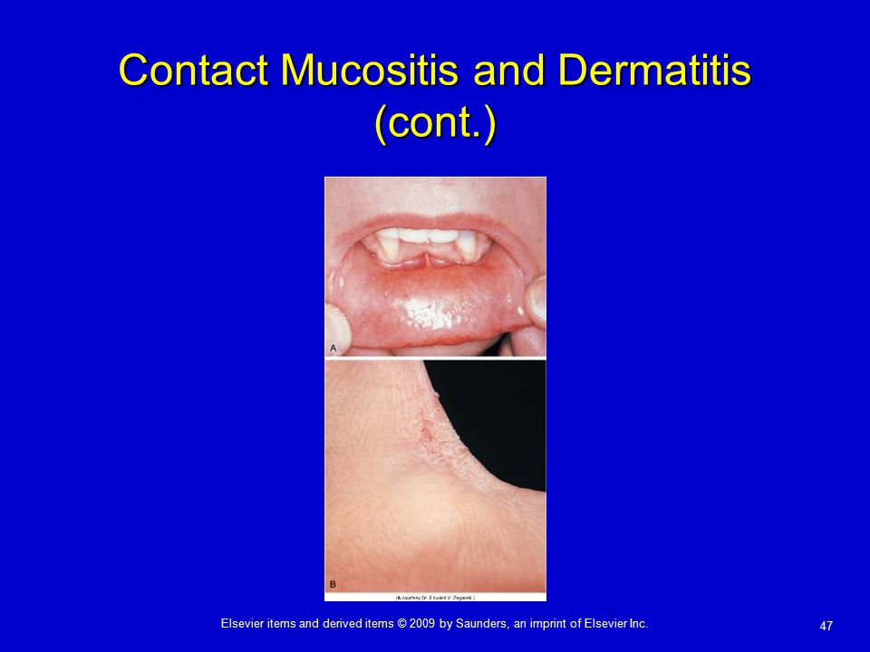 Contact Mucositis and Dermatitis (cont.)