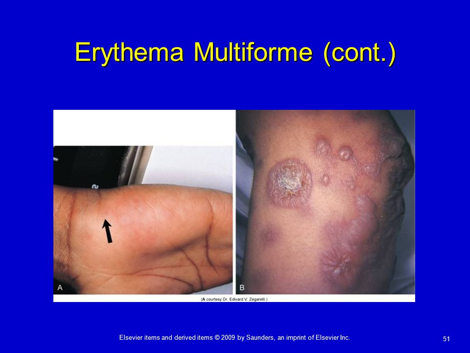 erythema multiforme patient case presentation adult jpg 1500x1000