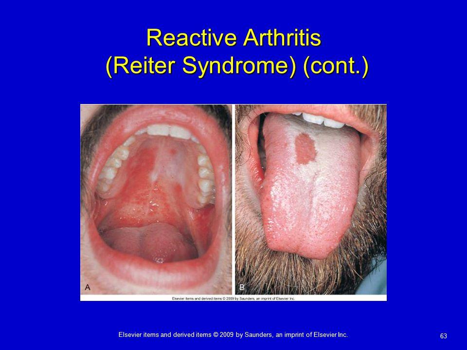 Reactive Arthritis (Reiter Syndrome) (cont.)