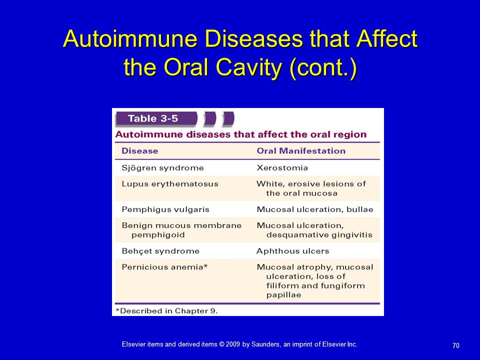 Autoimmune Diseases that Affect the Oral Cavity (cont.)