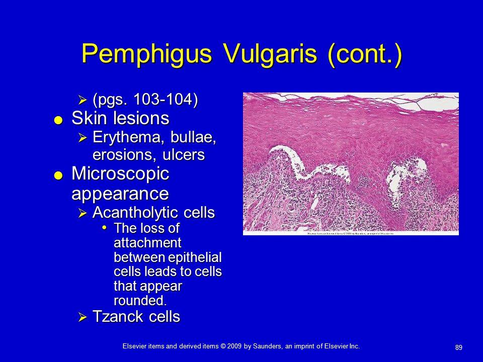 Pemphigus Vulgaris (cont.)