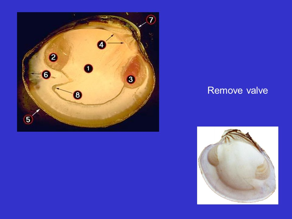 Remove valve