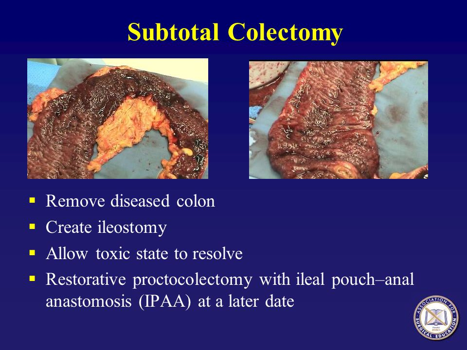 Subtotal Colectomy Remove diseased colon Create ileostomy