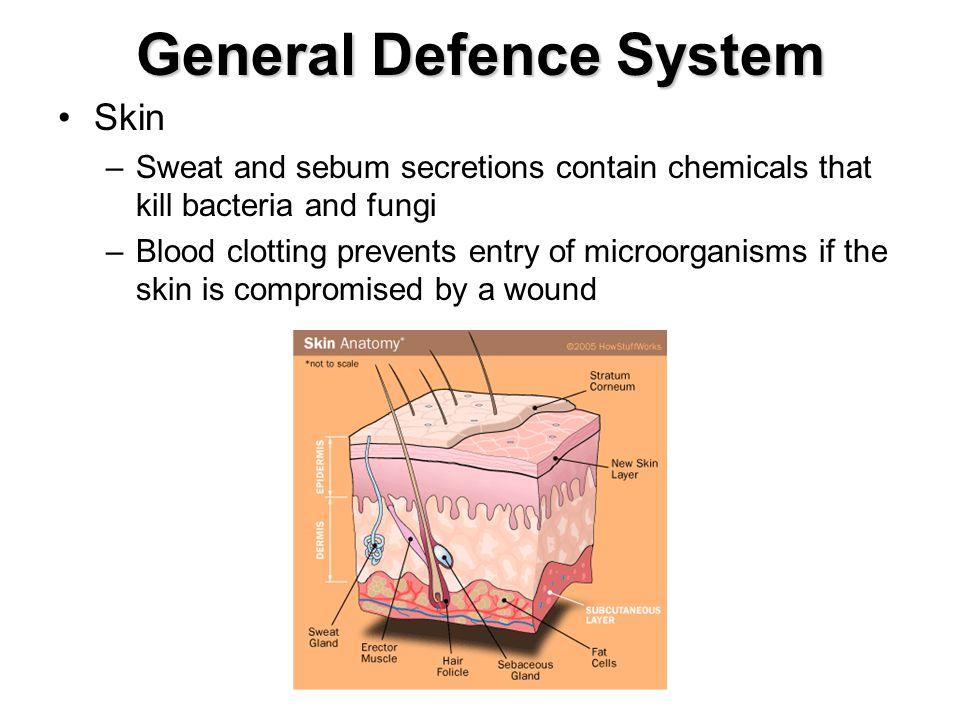 General Defence System