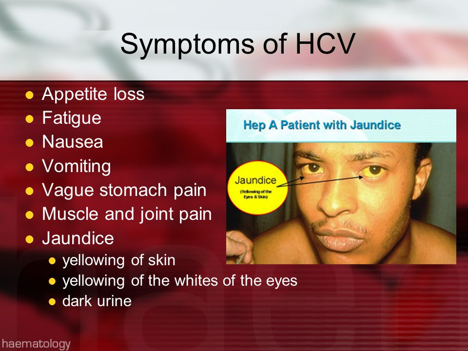 Symptoms of HCV Appetite loss Fatigue Nausea Vomiting