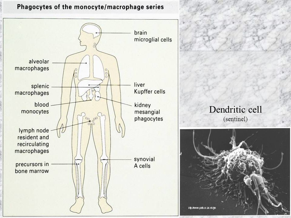 Dendritic cell (sentinel)