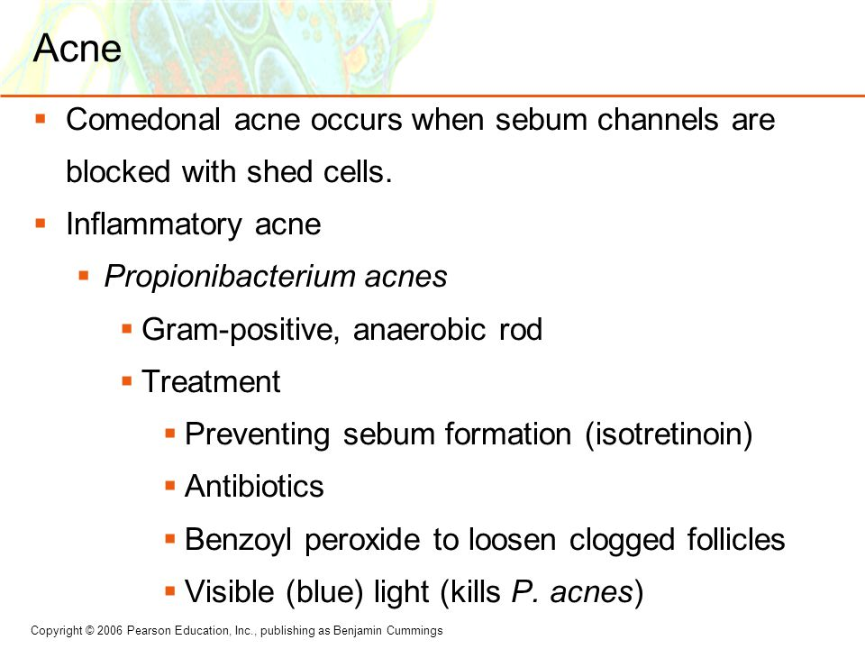 Acne Comedonal acne occurs when sebum channels are blocked with shed cells. Inflammatory acne. Propionibacterium acnes.
