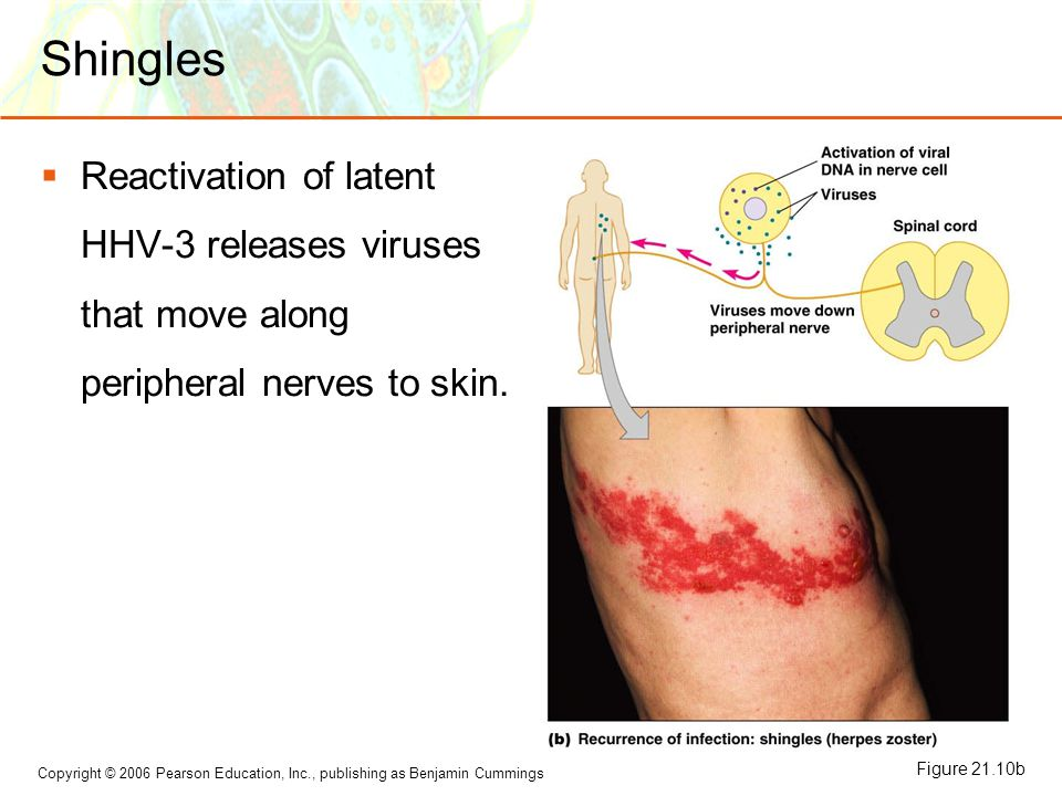 Shingles Reactivation of latent HHV-3 releases viruses that move along peripheral nerves to skin.