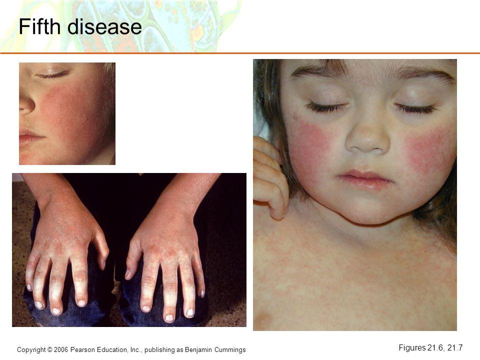Fifth disease Figures 21.6, 21.7