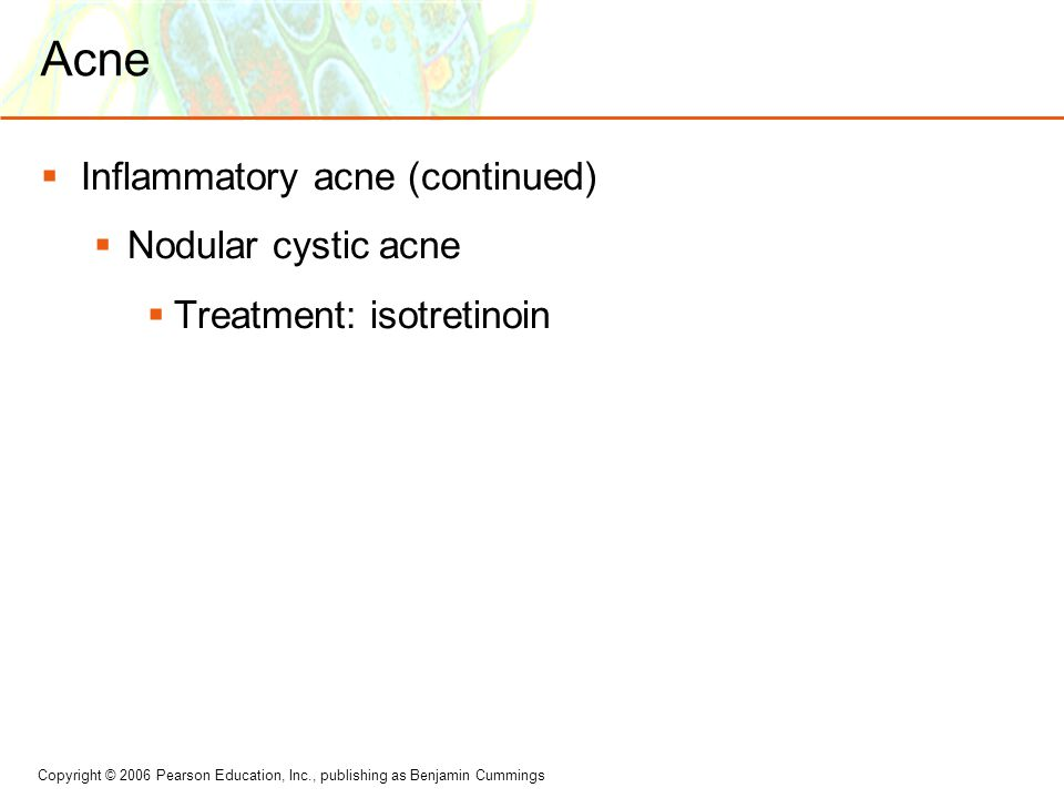Acne Inflammatory acne (continued) Nodular cystic acne