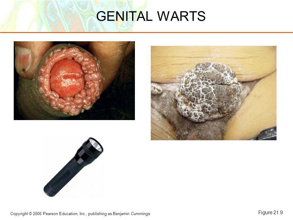 GENITAL WARTS Figure 21.9