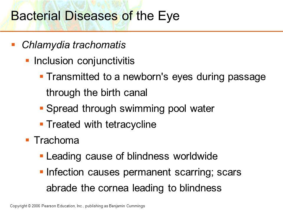 Bacterial Diseases of the Eye