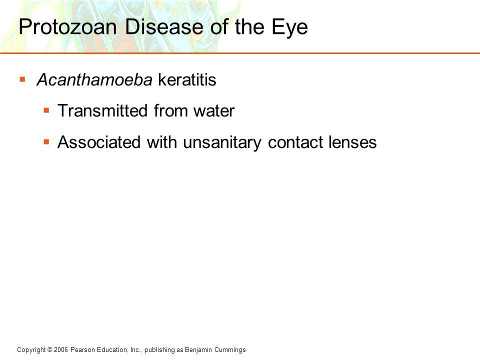 Protozoan Disease of the Eye