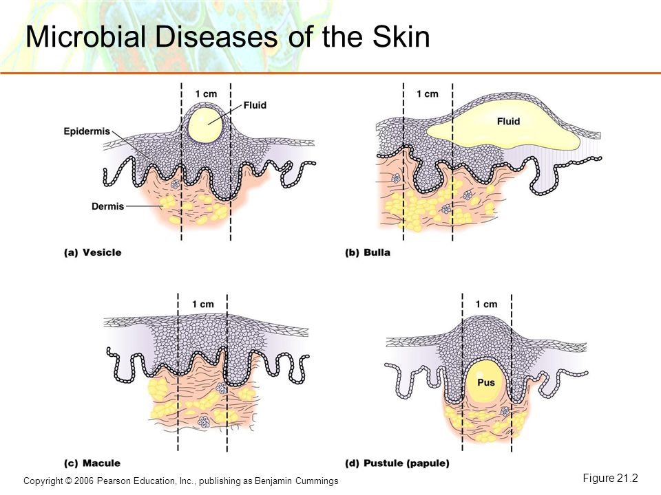 Microbial Diseases of the Skin