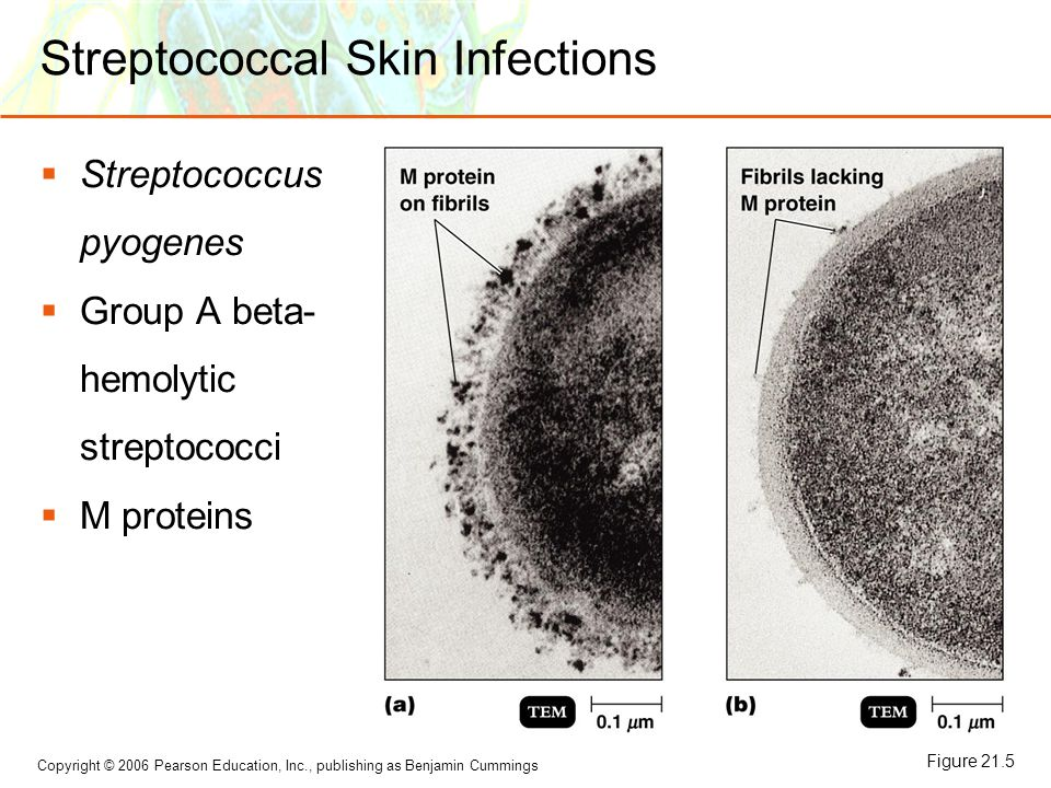 Streptococcal Skin Infections