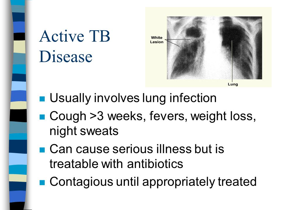 Active TB Disease Usually involves lung infection