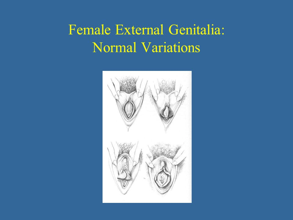 Female External Genitalia: Normal Variations