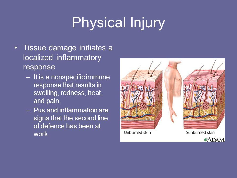 Physical Injury Tissue damage initiates a localized inflammatory response.