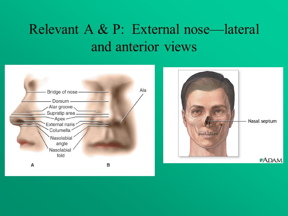 Relevant A & P: External nose—lateral and anterior views