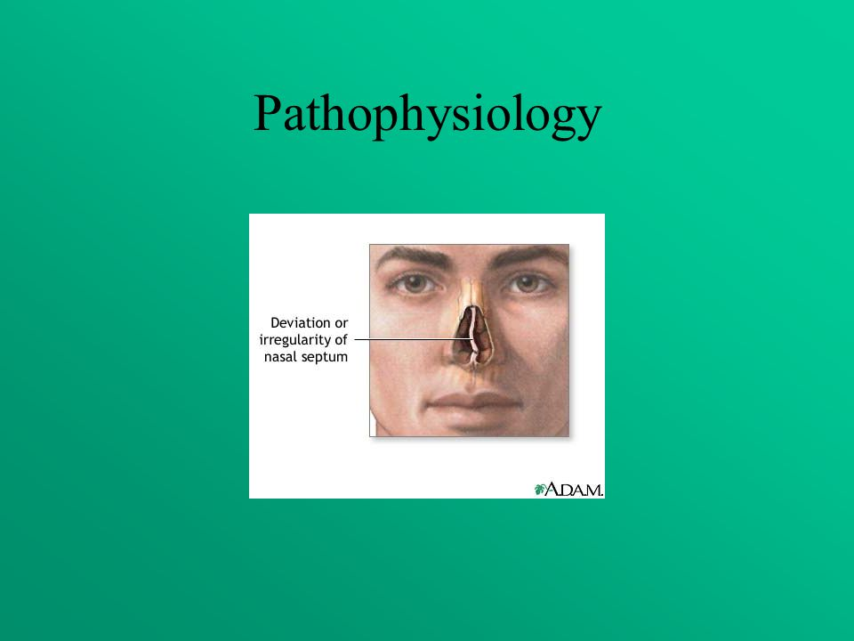 Pathophysiology Alexander: Septal deviations tend to cause sinus disease and nasal polyps. Allrefer.com: