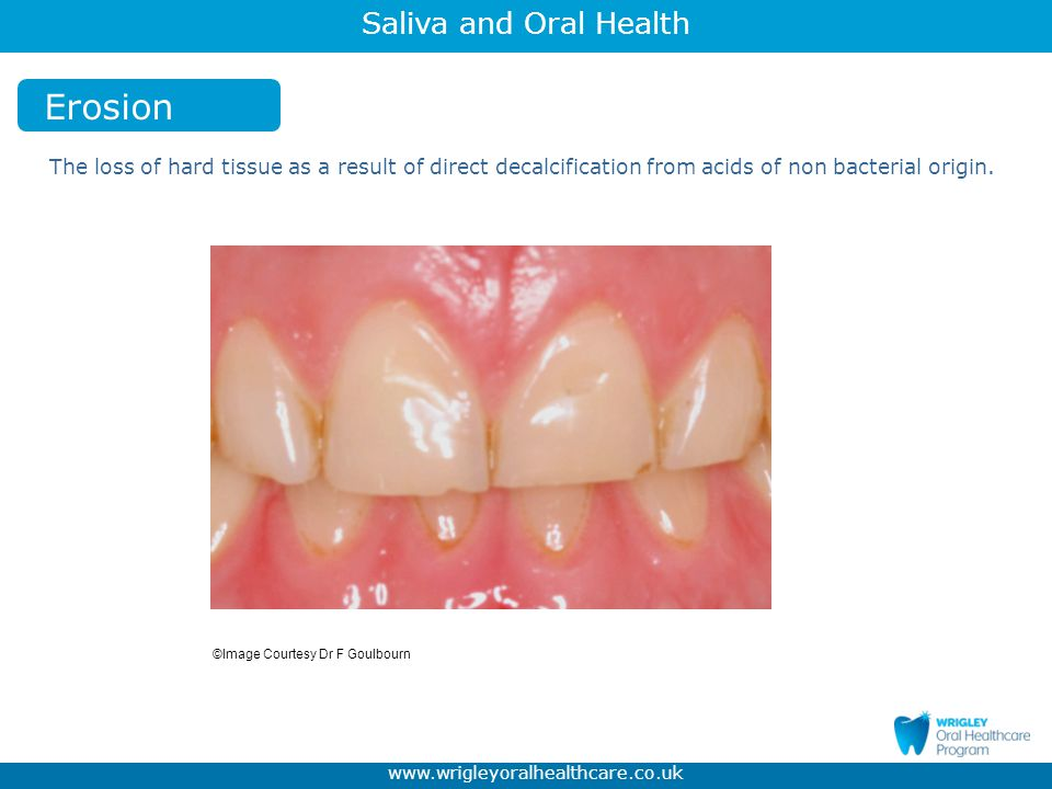 Erosion The loss of hard tissue as a result of direct decalcification from acids of non bacterial origin.