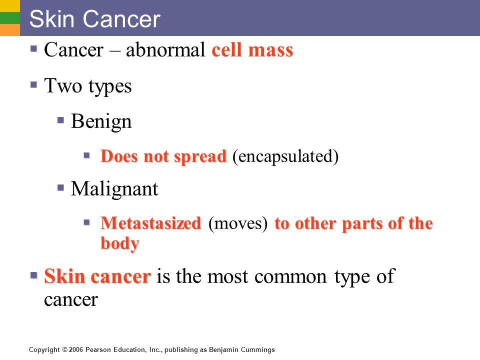 Skin Cancer Cancer – abnormal cell mass Two types Benign Malignant