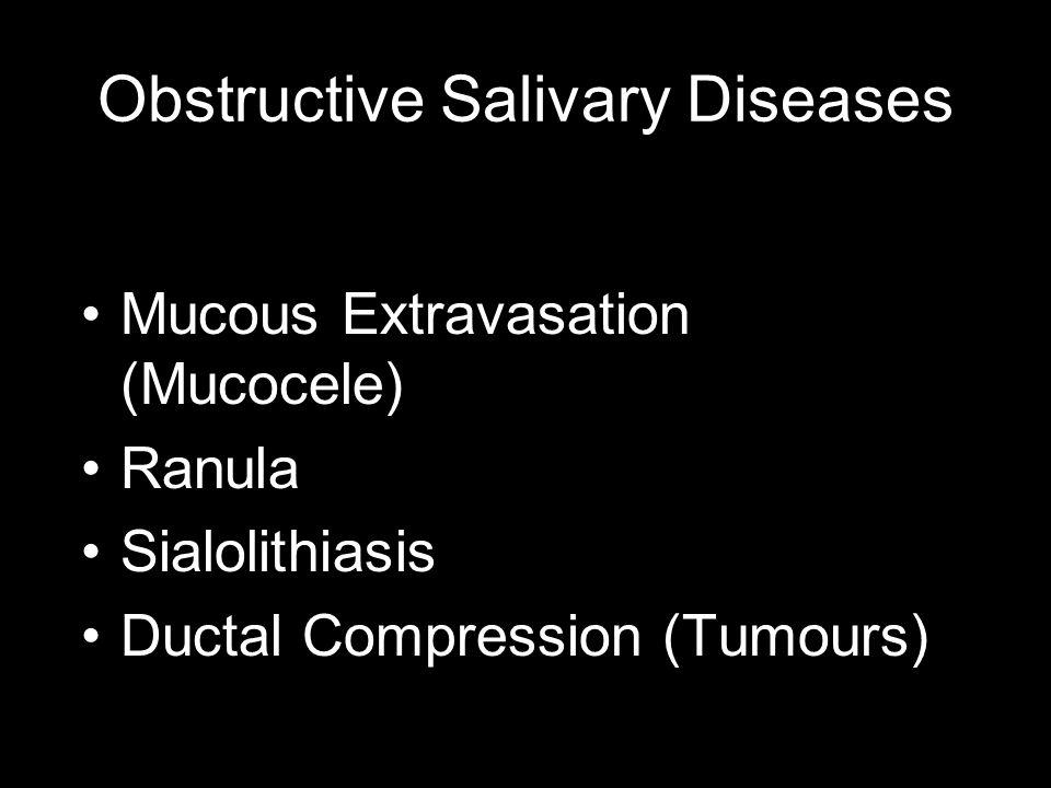 Obstructive Salivary Diseases