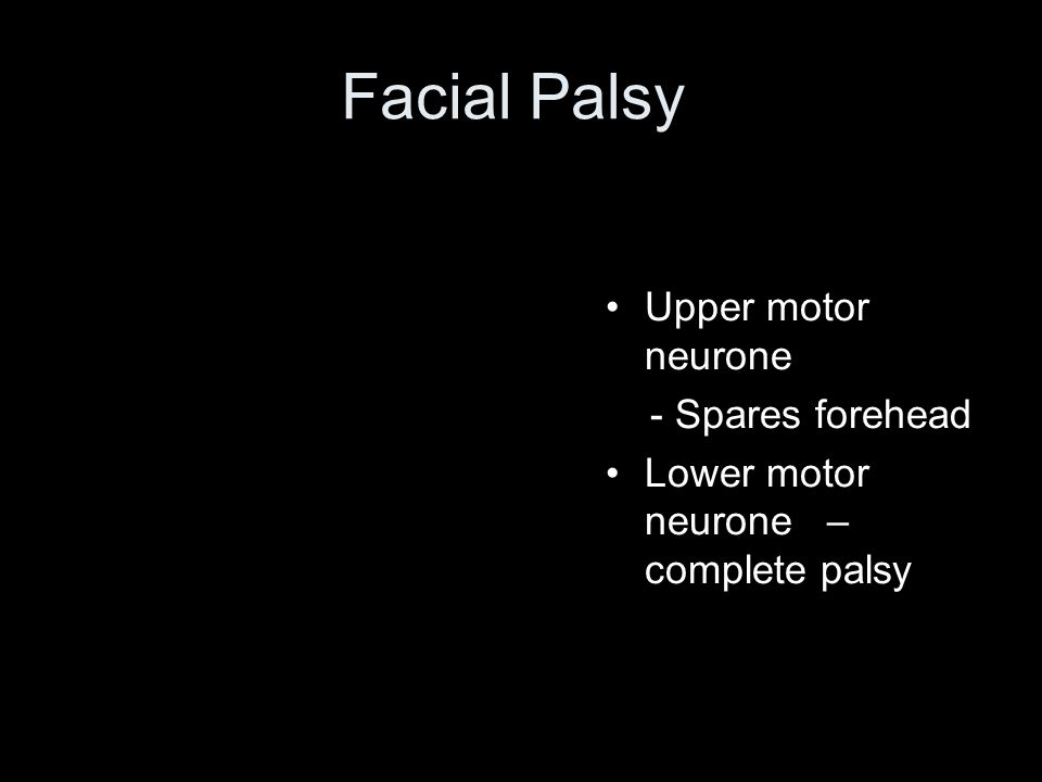 Facial Palsy Upper motor neurone - Spares forehead