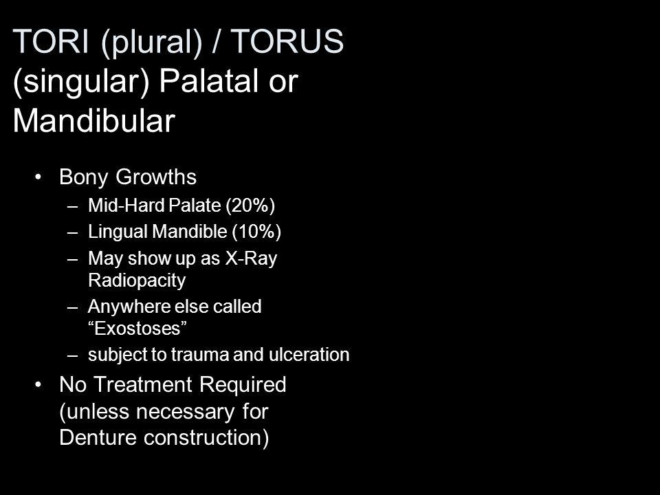 TORI (plural) / TORUS (singular) Palatal or Mandibular