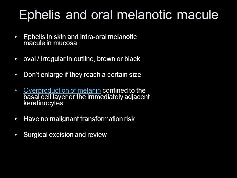 Ephelis and oral melanotic macule