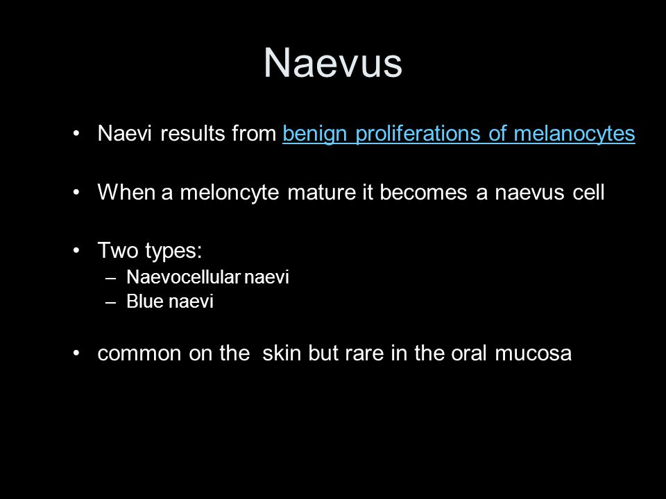 Naevus Naevi results from benign proliferations of melanocytes