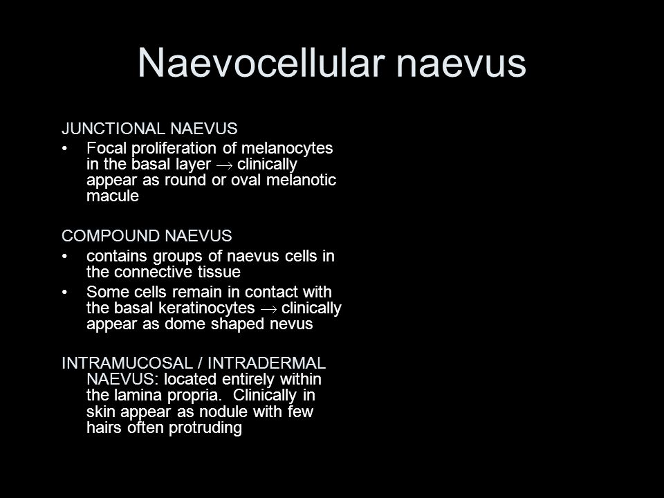 Naevocellular naevus JUNCTIONAL NAEVUS