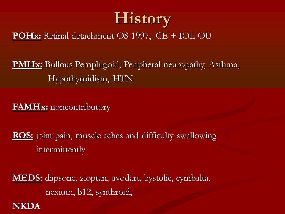 History POHx: Retinal detachment OS 1997, CE + IOL OU