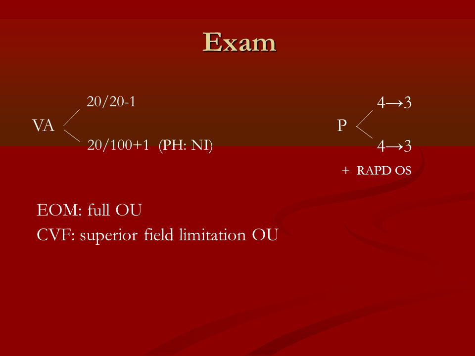 Exam 4→3 VA P EOM: full OU CVF: superior field limitation OU 20/20-1