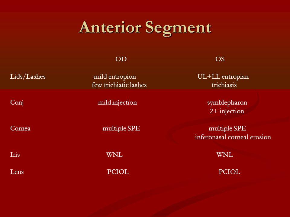 Anterior Segment OD OS Lids/Lashes mild entropion UL+LL entropian