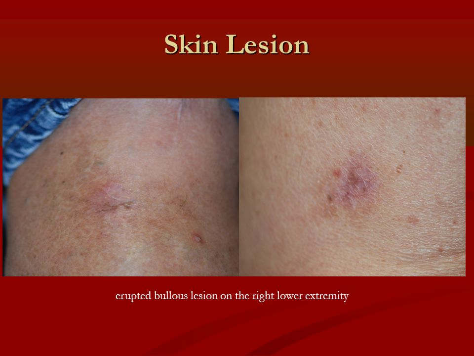 Skin Lesion erupted bullous lesion on the right lower extremity