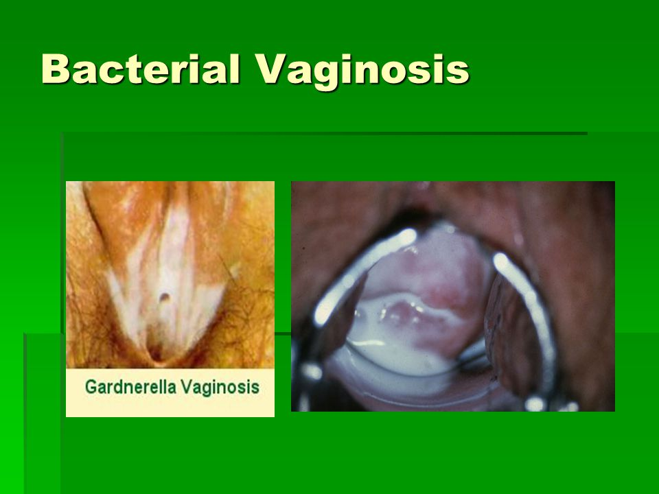 What Is Vaginal Odor recommendations