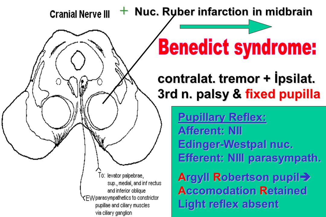 + Nuc. Ruber infarction in midbrain