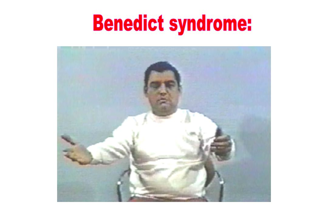 Benedict syndrome: