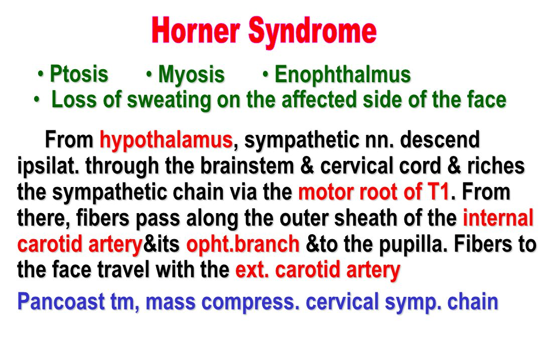 Horner Syndrome Ptosis. Myosis. Enophthalmus. Loss of sweating on the affected side of the face.