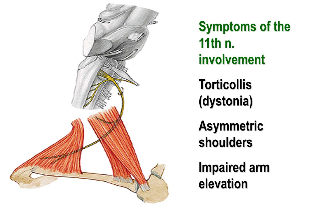 Symptoms of the 11th n. involvement