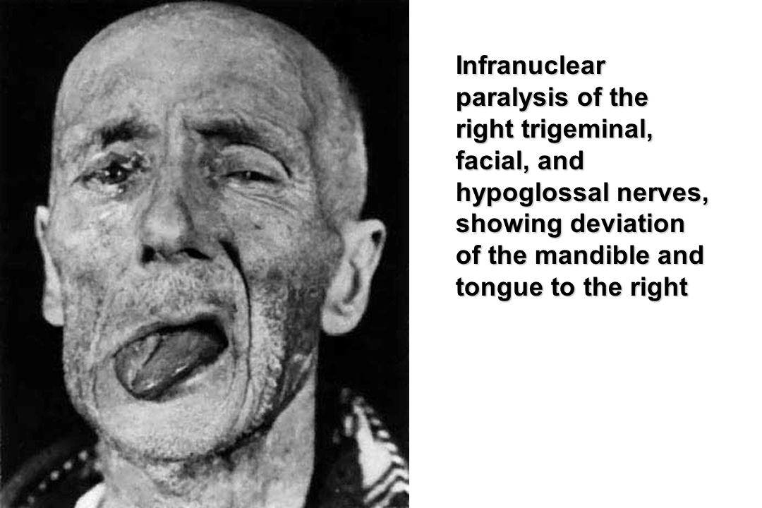Infranuclear paralysis of the right trigeminal, facial, and hypoglossal nerves, showing deviation of the mandible and tongue to the right